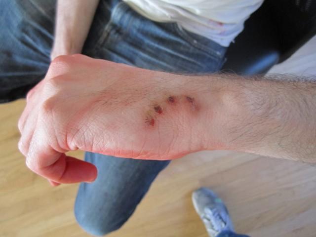 Инфекционная рана
